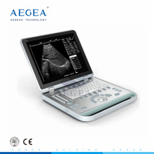 popularity priced AG-BU007 15 inch TFT screen hospital portable doppler ultrasound machine